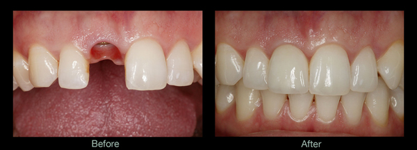 Dental Implants Cedar Park