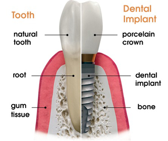 Dental Implant – Reveal Dental, Cedar Park, TX