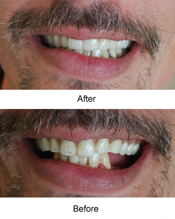 Dentistry-After