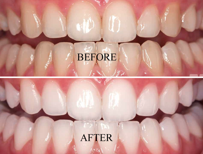 Teeth Whitening Cedar Park Reveal Dental