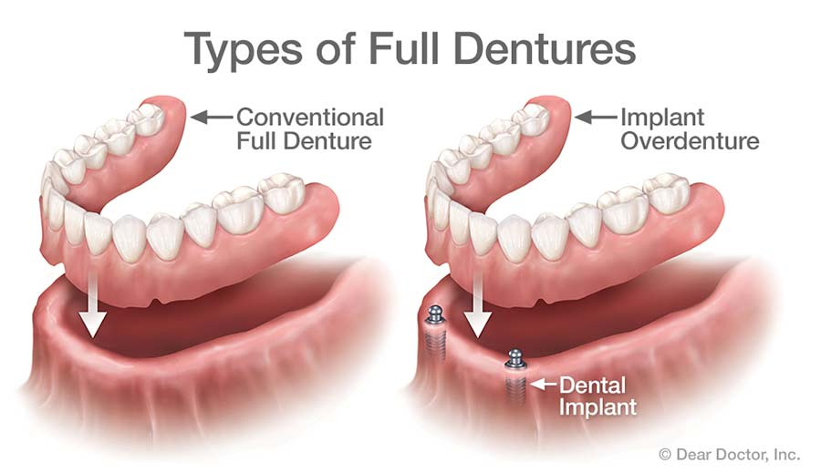 Which Are The Better Option Dental Implants Or Dentures
