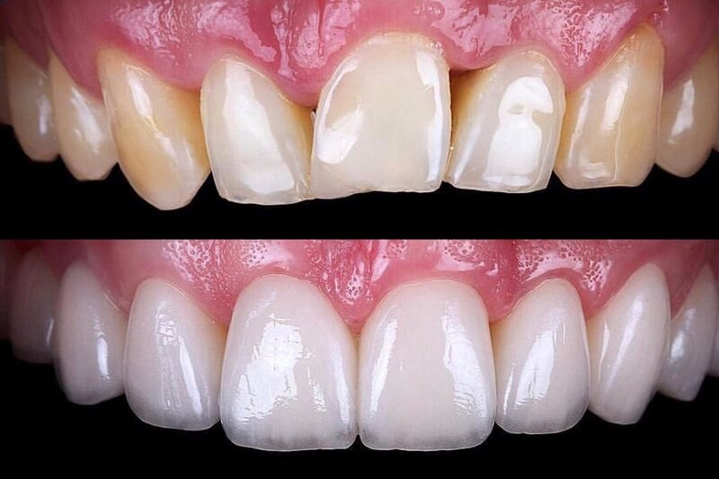 How to finance cosmetic dentistry | Best Dental in Houston, TX